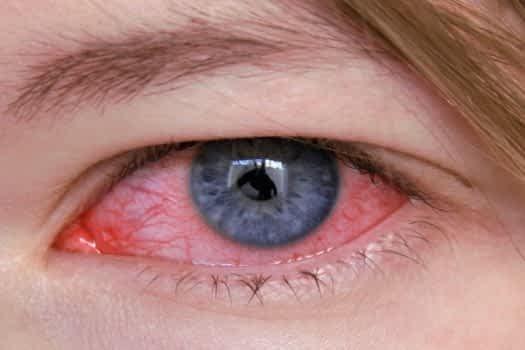 olho_vermelho_16615_l